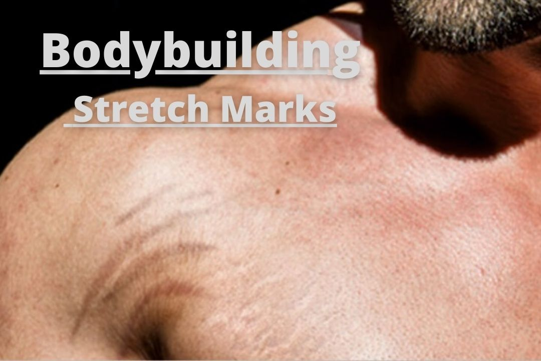Bodybuilding Stretch Marks Cause, Removal