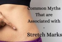 Common Myths That are Associated with Stretch Marks